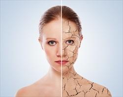 ストレスによる肌トラブル